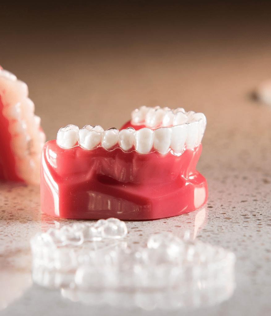 Капы для зубов фото детей