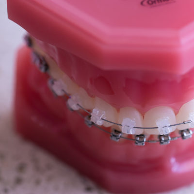 Treatment-braces-07-400x400 Clear Braces  - Braces and Invisalign in Tupelo Mississippi and Mississippi Orthodontist. Tupelo Orthodontist