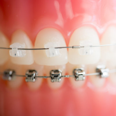Treatment-braces-10-400x400 Clear Braces  - Braces and Invisalign in Tupelo Mississippi and Mississippi Orthodontist. Tupelo Orthodontist
