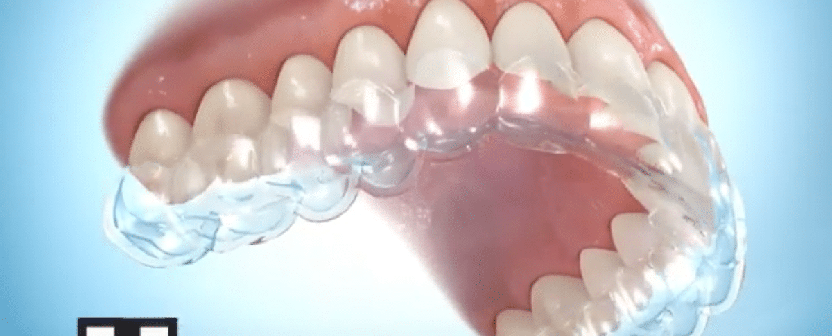 how to clean your invisalign retainer